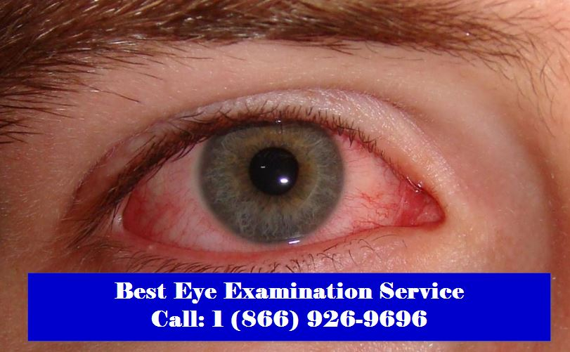 Eye Examination in Edmotnon